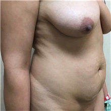 Tummy Tuck Before Photo by Michael Fallucco, MD, FACS; Jacksonville, FL - Case 30984
