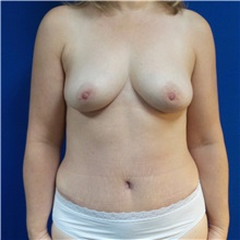 Tummy Tuck After Photo by Michael Fallucco, MD, FACS; Jacksonville, FL - Case 30985