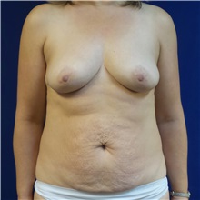 Tummy Tuck Before Photo by Michael Fallucco, MD, FACS; Jacksonville, FL - Case 30985