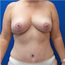 Tummy Tuck After Photo by Michael Fallucco, MD, FACS; Jacksonville, FL - Case 30986