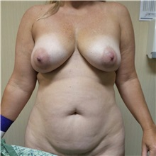 Tummy Tuck Before Photo by Michael Fallucco, MD, FACS; Jacksonville, FL - Case 30986
