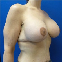 Breast Lift After Photo by Michael Fallucco, MD, FACS; Jacksonville, FL - Case 30987