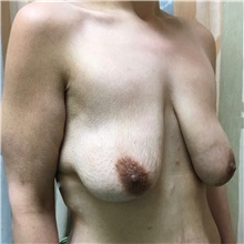 Breast Lift Before Photo by Michael Fallucco, MD, FACS; Jacksonville, FL - Case 30987
