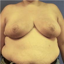Breast Reduction After Photo by Michael Fallucco, MD, FACS; Jacksonville, FL - Case 30988