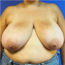 Breast Reduction Before Photo by Michael Fallucco, MD, FACS; Jacksonville, FL - Case 30988