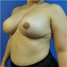 Breast Reduction After Photo by Michael Fallucco, MD, FACS; Jacksonville, FL - Case 30989