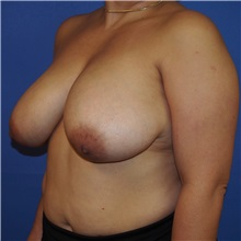 Breast Reduction Before Photo by Michael Fallucco, MD, FACS; Jacksonville, FL - Case 30989