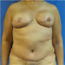 Breast Reconstruction After Photo by Michael Fallucco, MD, FACS; Jacksonville, FL - Case 30991