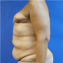 Breast Reconstruction Before Photo by Michael Fallucco, MD, FACS; Jacksonville, FL - Case 30991