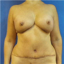 Breast Reconstruction After Photo by Michael Fallucco, MD, FACS; Jacksonville, FL - Case 30992
