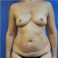 Breast Reconstruction Before Photo by Michael Fallucco, MD, FACS; Jacksonville, FL - Case 30992