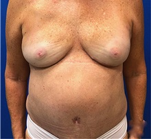 Breast Reconstruction After Photo by Michael Fallucco, MD, FACS; Jacksonville, FL - Case 34048