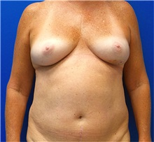 Breast Reconstruction Before Photo by Michael Fallucco, MD, FACS; Jacksonville, FL - Case 34048