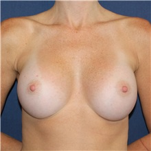 Breast Augmentation After Photo by Brian Windle, MD; Bellevue, WA - Case 32362