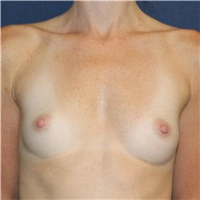 Breast Augmentation Before Photo by Brian Windle, MD; Bellevue, WA - Case 32362
