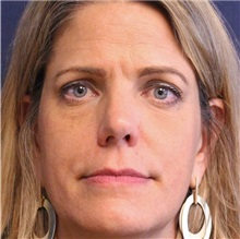 Dermal Fillers After Photo by Brian Windle, MD; Bellevue, WA - Case 32824