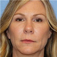 Dermal Fillers After Photo by Brian Windle, MD; Bellevue, WA - Case 33448