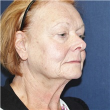 Eyelid Surgery Before Photo by Brian Windle, MD; Bellevue, WA - Case 33563