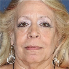 Dermal Fillers After Photo by Brian Windle, MD; Bellevue, WA - Case 33576