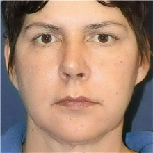 Dermal Fillers After Photo by Brian Windle, MD; Bellevue, WA - Case 33591
