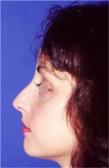 Rhinoplasty Before Photo by Theodore Diktaban, MD; New York, NY - Case 40991