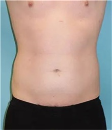 Liposuction Before Photo by Theodore Diktaban, MD; New York, NY - Case 41274