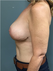 Breast Reduction After Photo by Matthew Camp, MD; Minnetonka, MN - Case 33834