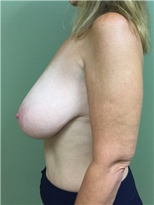 Breast Reduction Before Photo by Matthew Camp, MD; Minnetonka, MN - Case 33834