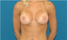 Breast Augmentation After Photo by Scott Sattler, MD,  FACS; Seattle, WA - Case 34333