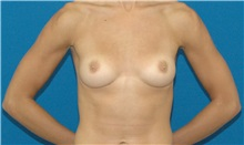Breast Augmentation Before Photo by Scott Sattler, MD,  FACS; Seattle, WA - Case 34333