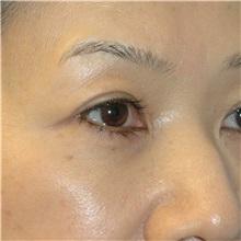 Eyelid Surgery After Photo by Scott Sattler, MD,  FACS; Seattle, WA - Case 34345