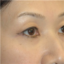 Eyelid Surgery Before Photo by Scott Sattler, MD,  FACS; Seattle, WA - Case 34345