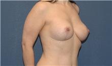Breast Lift After Photo by Scott Sattler, MD,  FACS; Seattle, WA - Case 34346
