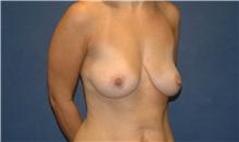 Breast Lift Before Photo by Scott Sattler, MD,  FACS; Seattle, WA - Case 34346