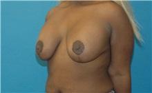 Breast Lift After Photo by Scott Sattler, MD,  FACS; Seattle, WA - Case 34648