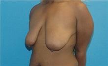Breast Lift Before Photo by Scott Sattler, MD,  FACS; Seattle, WA - Case 34648