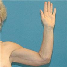 Arm Lift After Photo by Scott Sattler, MD,  FACS; Seattle, WA - Case 38411