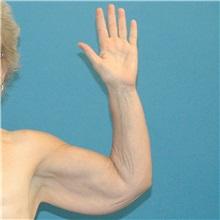Arm Lift Before Photo by Scott Sattler, MD,  FACS; Seattle, WA - Case 38411