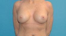 Breast Augmentation After Photo by Scott Sattler, MD,  FACS; Seattle, WA - Case 38414