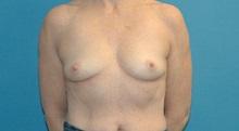 Breast Augmentation Before Photo by Scott Sattler, MD,  FACS; Seattle, WA - Case 38414