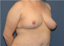 Breast Reduction After Photo by Scott Sattler, MD,  FACS; Seattle, WA - Case 38431