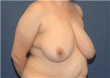 Breast Reduction Before Photo by Scott Sattler, MD,  FACS; Seattle, WA - Case 38431