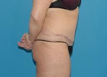 Tummy Tuck After Photo by Scott Sattler, MD,  FACS; Seattle, WA - Case 38438