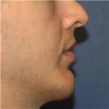 Chin Augmentation After Photo by Scott Sattler, MD,  FACS; Seattle, WA - Case 38592