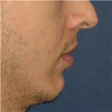 Chin Augmentation Before Photo by Scott Sattler, MD,  FACS; Seattle, WA - Case 38592