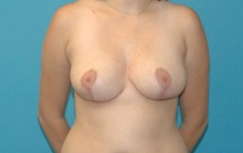 Breast Reduction After Photo by Scott Sattler, MD,  FACS; Seattle, WA - Case 38598