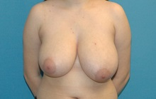 Breast Reduction Before Photo by Scott Sattler, MD,  FACS; Seattle, WA - Case 38598