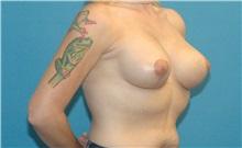 Breast Lift After Photo by Scott Sattler, MD,  FACS; Seattle, WA - Case 38602