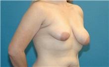 Breast Lift Before Photo by Scott Sattler, MD,  FACS; Seattle, WA - Case 38602
