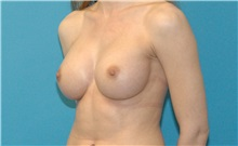 Breast Augmentation After Photo by Scott Sattler, MD,  FACS; Seattle, WA - Case 38603